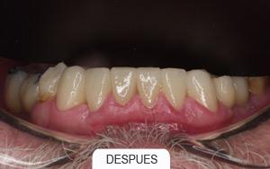 Al dentista no solo se va cuando hay dolor